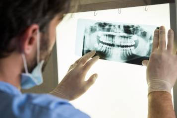Dentist looking at a dental x-ray
